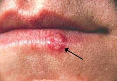 herpes behandeling