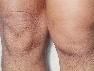 artrose groenlipmossel
