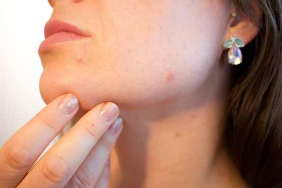 acne in gezicht