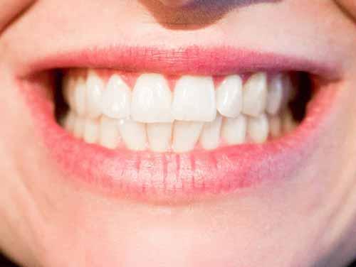 gezonde tanden triphala